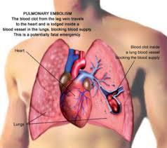 علت مهم و کشنده درد سینه