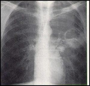 نشانه های ابتلا به عفونت ریه