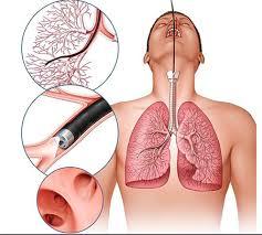 برونکوسکوپی ریه چیست؟