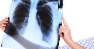 بیماری متاستاتیک ریه و حذف آن
